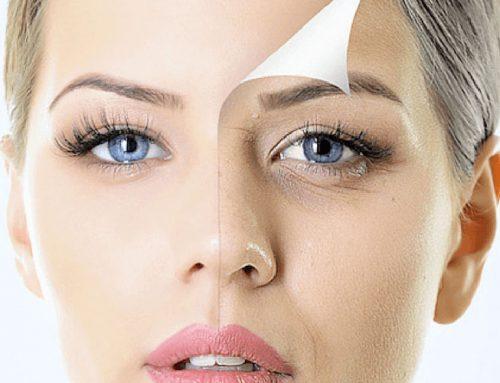 12 respostas para as maiores dúvidas sobre rejuvenescimento facial
